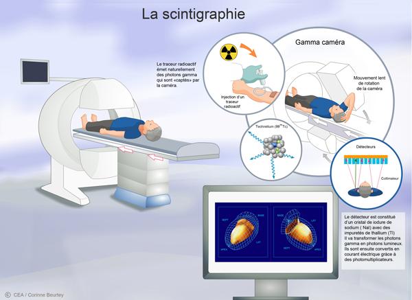 scintigraphie-schema-small